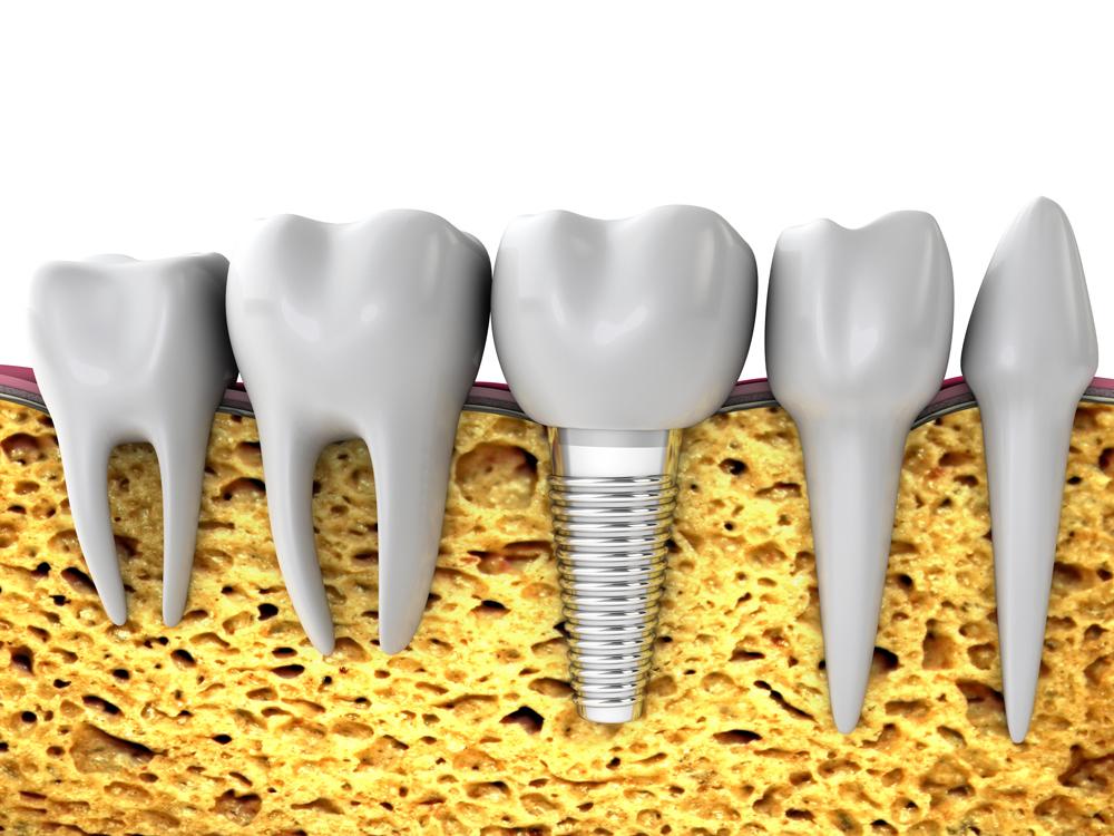 Kieferknochen_mit_Implantat